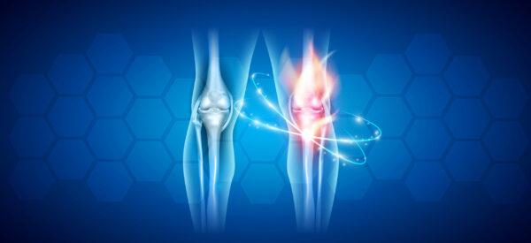 Arthrose Kniegelenk Schmerzen Rheuma
